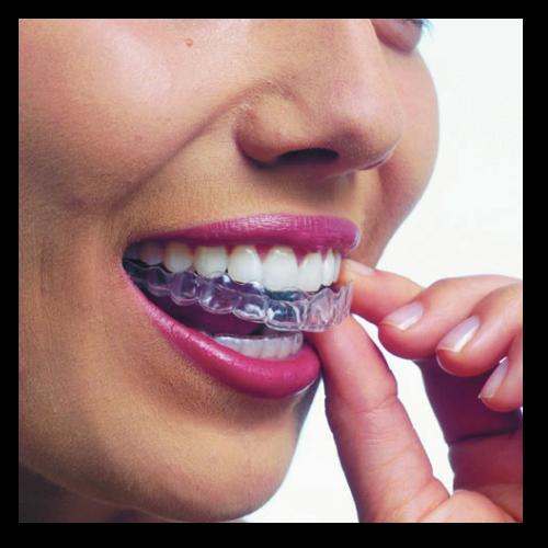 tratamento-Ortodontia-Invisivel-INVISALIGN